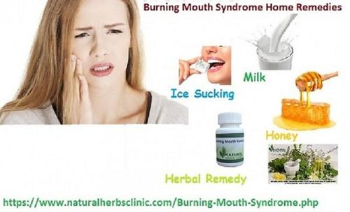 Natural_Herbal_Remedies_for_Burning_Mouth_Syndrome_Reduce_the_Irritating_Condition.jpg