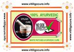 vitiligo cure point |